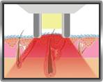 Zeolight® αισθητικό σύστημα λέιζερ